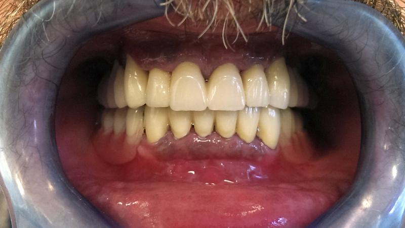 proteza, metal keramički most, implantati, zubni implantati