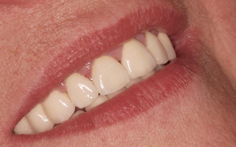 zubna proteza, wironit proteza, djelomična proteza, metal keramički zubni most