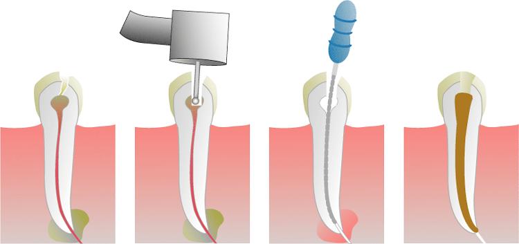 korijen zuba, endonancija, korijenski kanali, upaljeno zubno tkivo, zdravi zubi, zubno meso