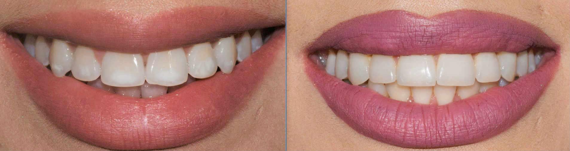 Trakice za izbeljivanje zuba forum