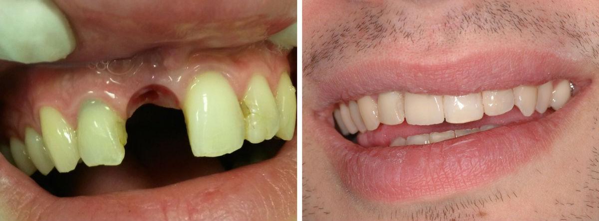 bezubost, nedostatak zuba, umjetni zub, ugradnja zuba