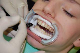 Popravljanje zubi
