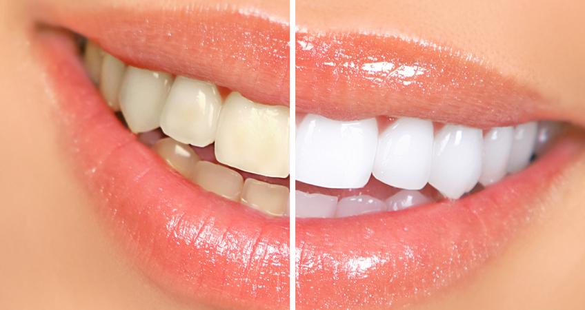 Brusenje zuba za bezmetalne keramike