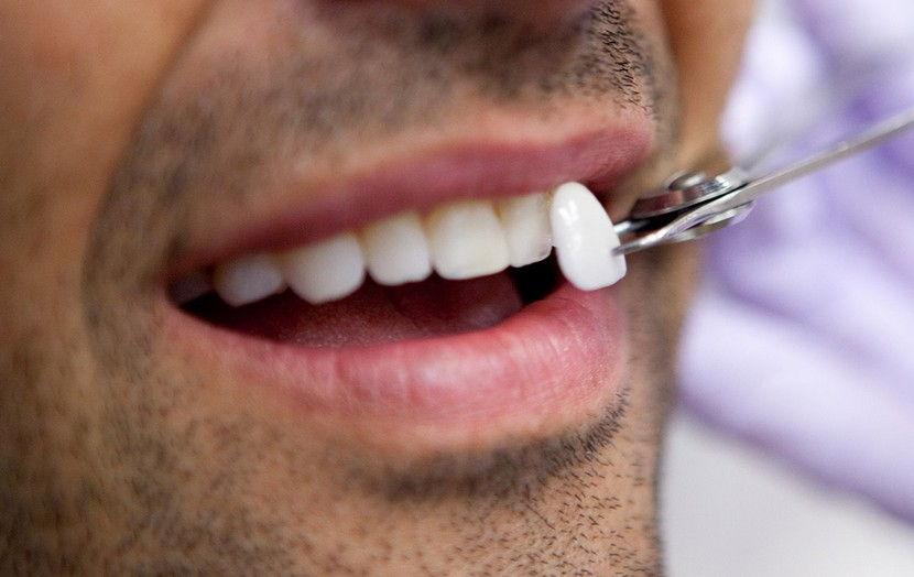 Како избјељују зуби