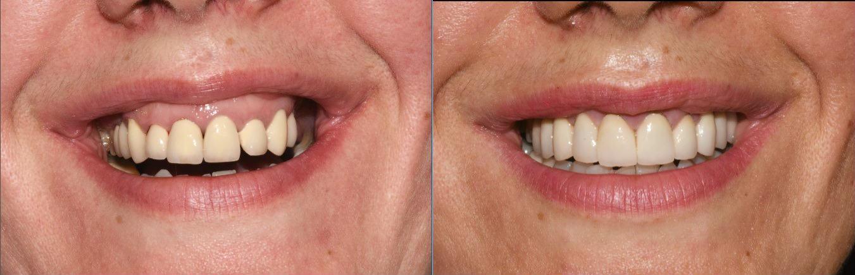 Izbeljivanje zuba prirodnim putem