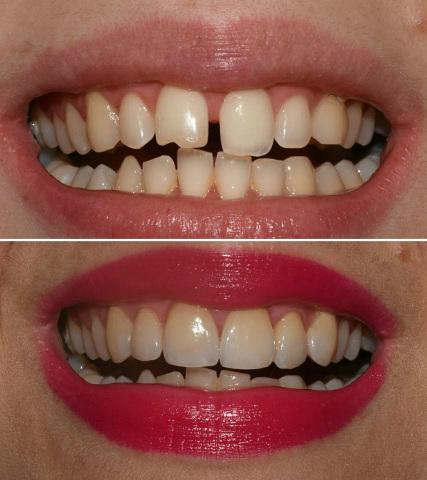 Kako prirodno izbeliti zube kod kuce