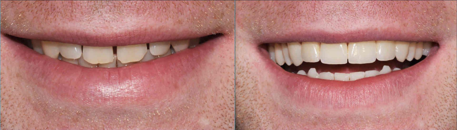 Hidrogen peroksida ispiranje usta