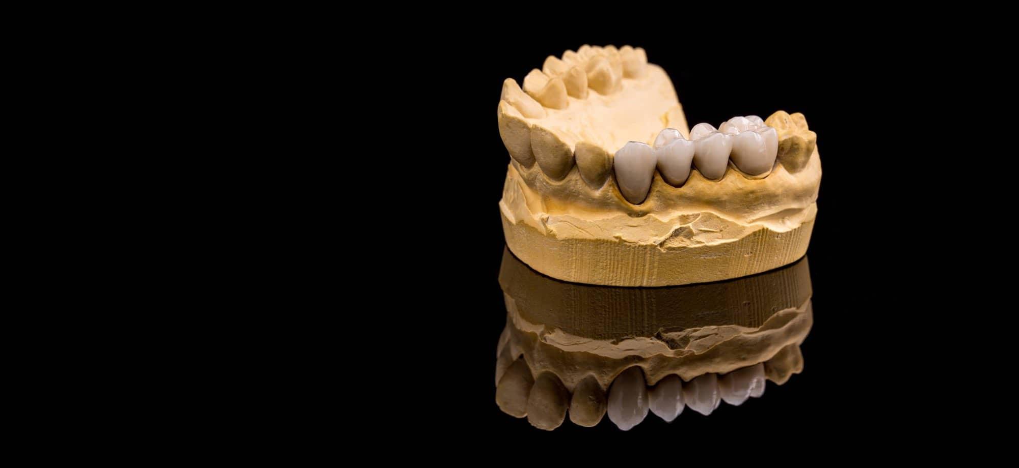zubna celjust keramika konstrukcija@2x