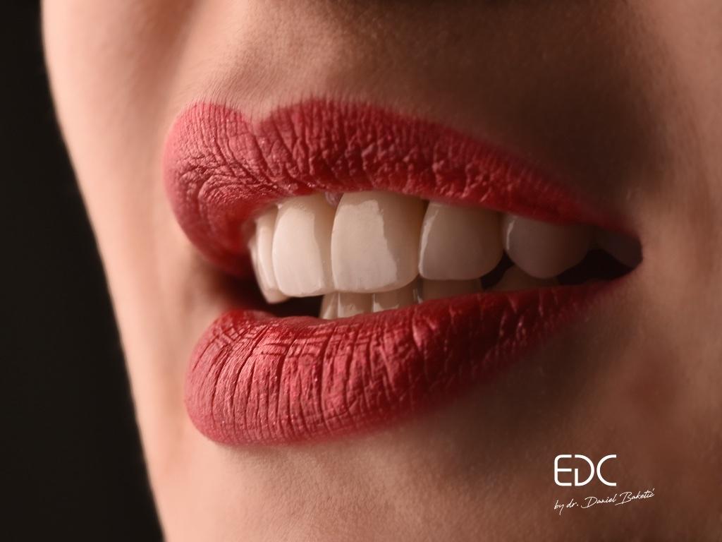 Crvena ženska usta uz bijeli osmijeh nakon tretmana u Esthetic Dental Centru