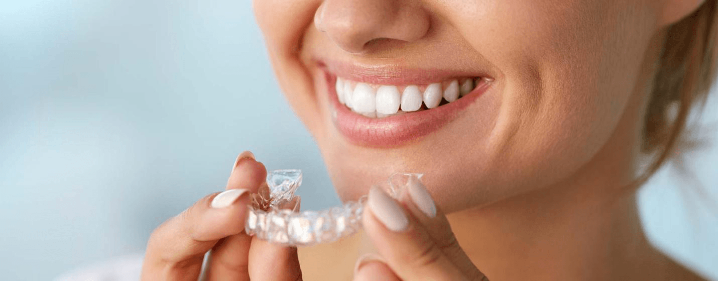 Prozirni aparatić za zube - Inman Aligner, EDC, Esthetic Dental Center