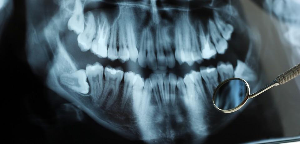 Dental RTG