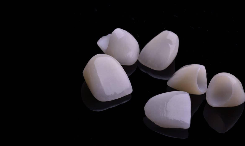 Zubne ljuskice