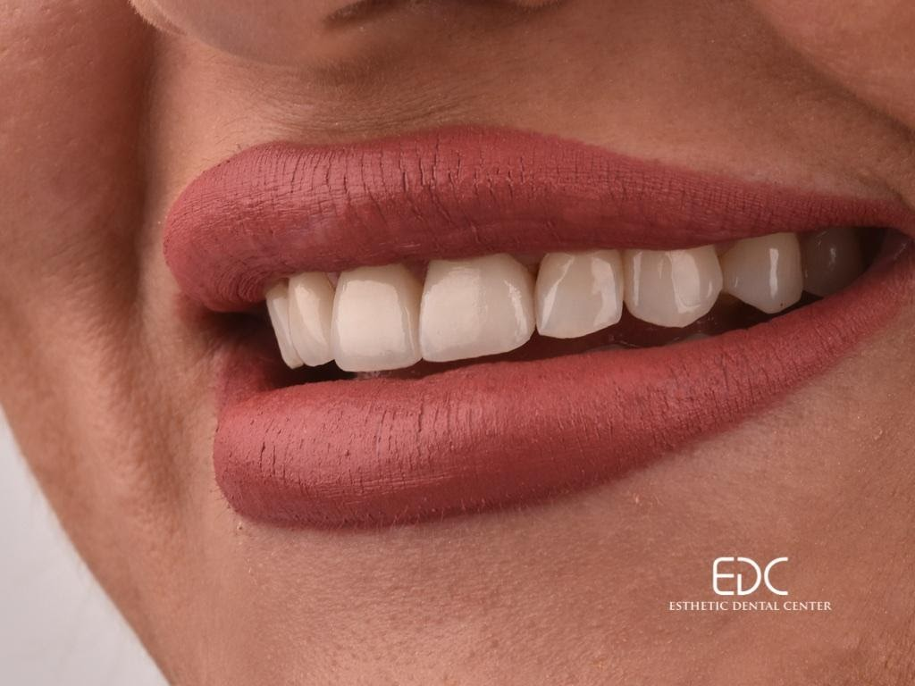 EDC primjer ljuskica za zube - ženski zubi