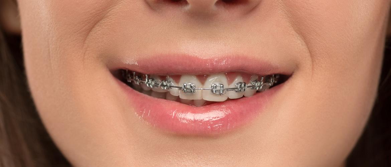 Mlada žena nosi fiksni aparatić za zube