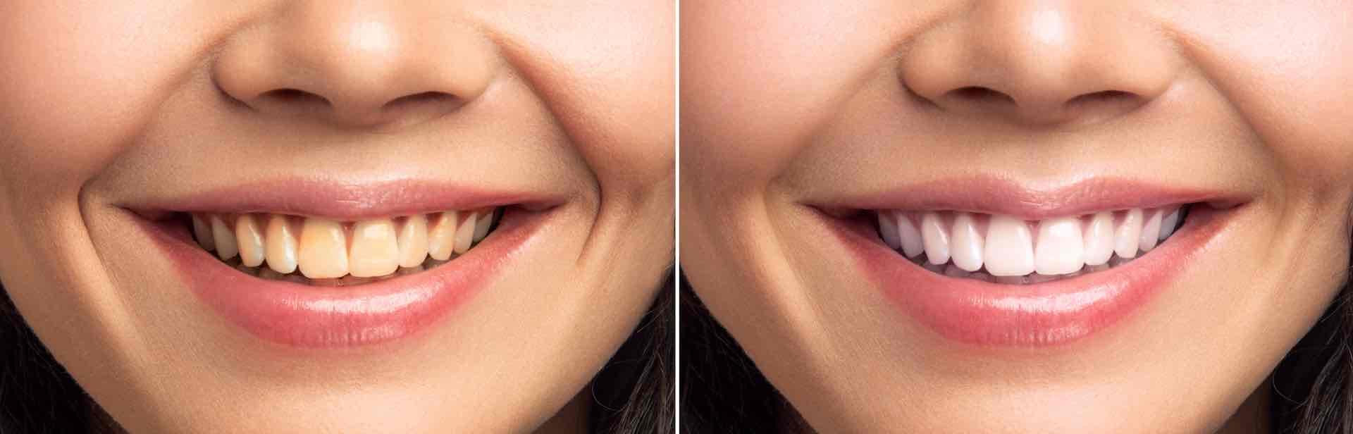 Izbjeljivanje zubi prije i poslije
