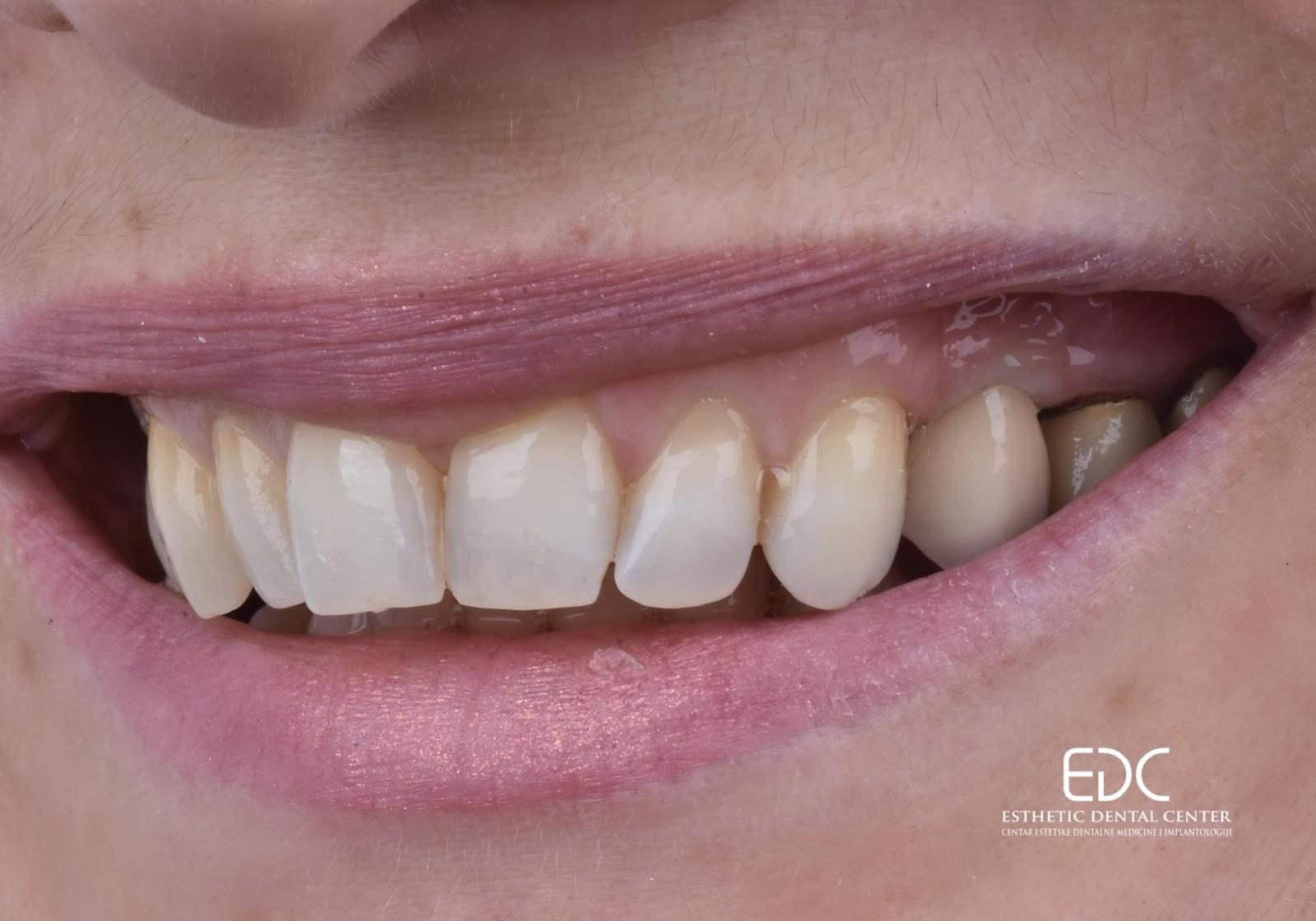 EDC primjer nadomještanja zubi