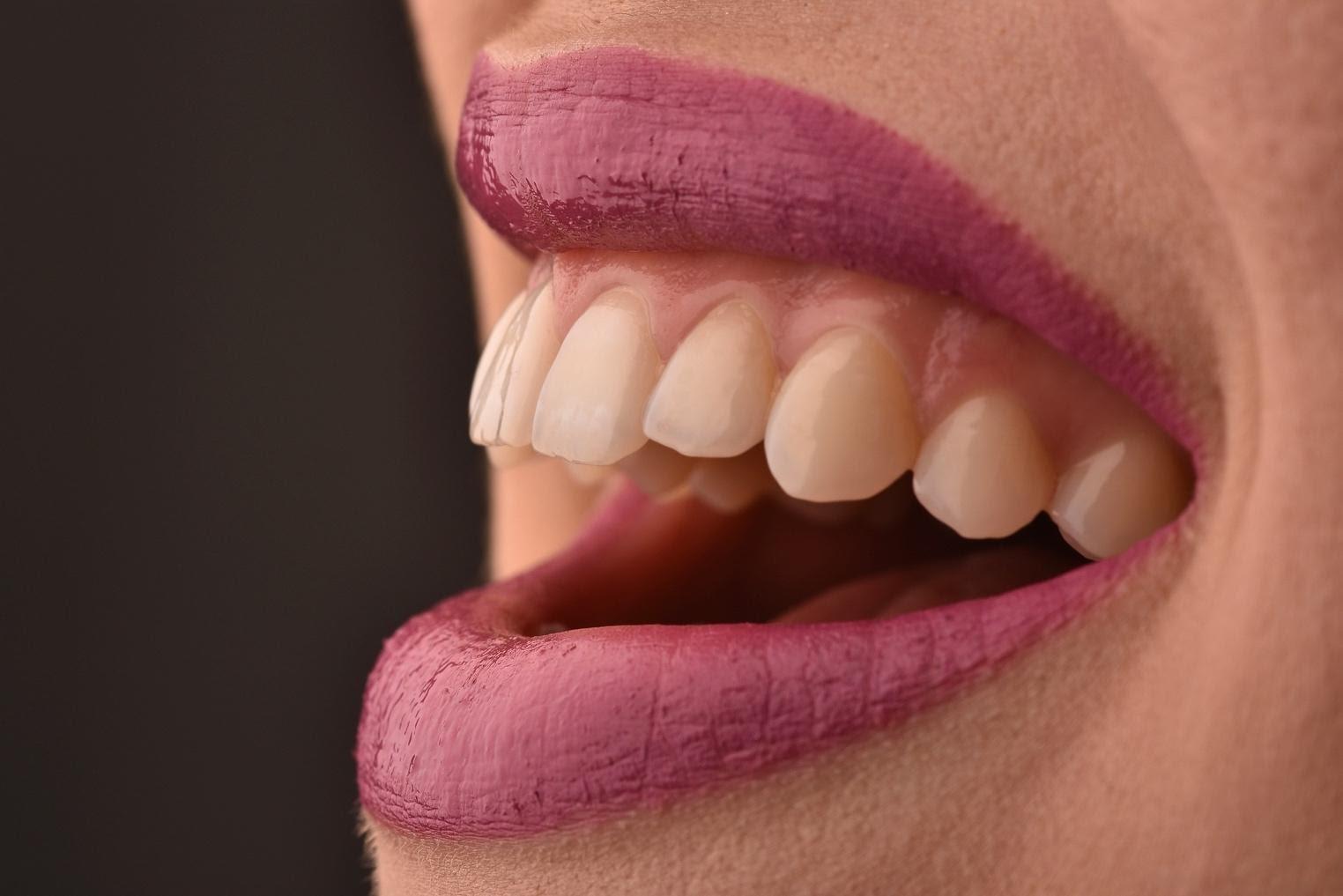 EDC zubne krunice primjer 1