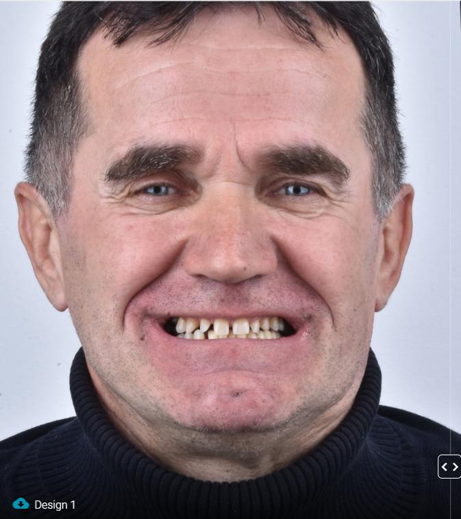 2021-01-josip-novi-zubi-1