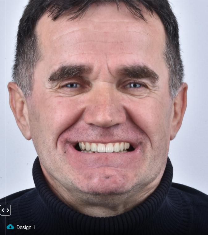 2021-01-josip-novi-zubi-2
